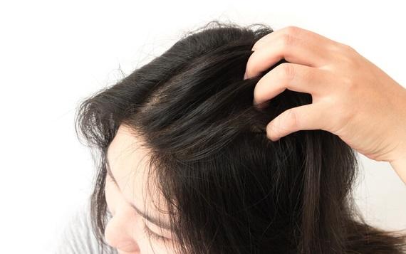 Kepekli saçın belirtileri