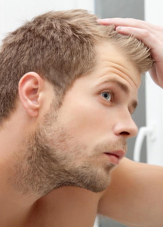 Erkek tipi saç dökülmesi nedir ve nasıl önlenir?