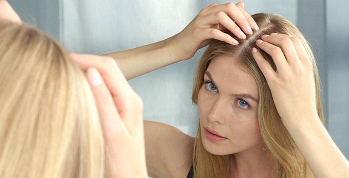 Saç dökülmesinin çeşitleri nelerdir?